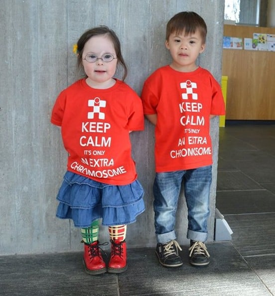 About Downs Syndrome